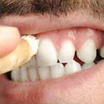 Garder les dents propres